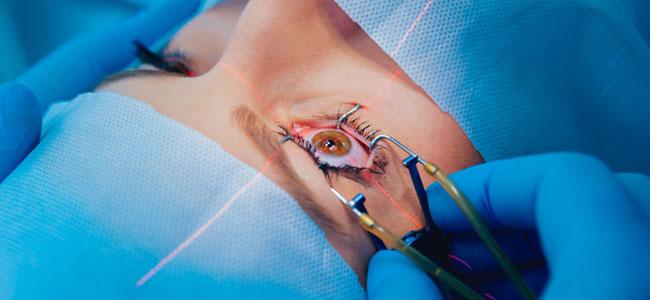 En quoi consiste une opération de la cataracte