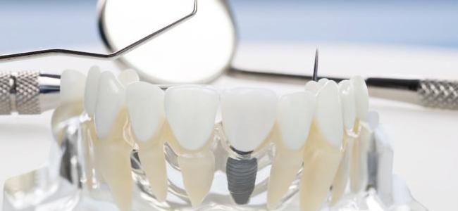 entretenir un implant dentaire